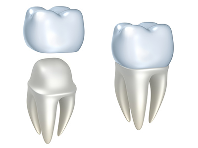 Rendering of dental crowns. Learn more about the benefits of dental crowns at River's Edge Dental in Great Falls, MT.