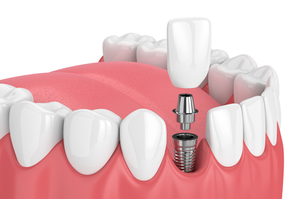 Diagram of a single tooth dental implant. Find out more about our dental implant treatments at River's Edge Dental in Great Falls, MT