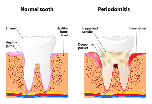 Illustration of a tooth with periodontal disease, in need of scaling and root planing. We offer various forms of periodontal treatment at River's Edge Dental in Great Falls, MT.