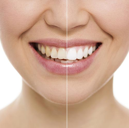 Teeth Whitening at River's Edge Dental in Great Falls, MT