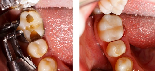 Composite fillings at River's Edge Dental in Great Falls, MT